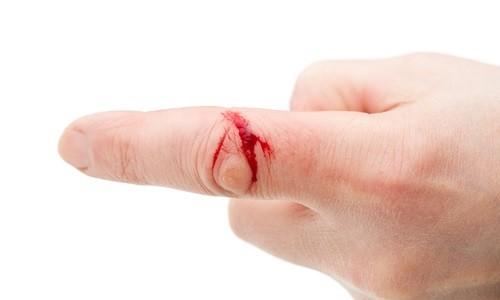 Проблема плохой свертываемости крови