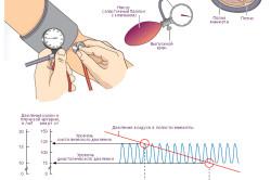Измерение артериального давления крови неинвазивным методом