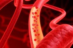 Индекс распределения тромбоцитов повышен что это значит