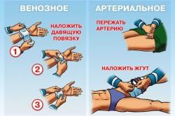 Схема остановки кровотечений