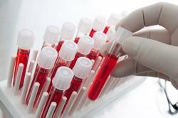 Анализ на содержание амилазы в крови