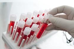 Анализ крови при сахарном диабтее