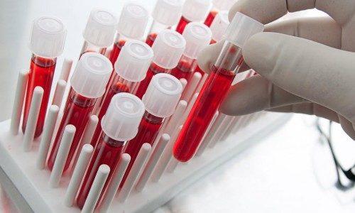 Проведение биохимического анализа крови