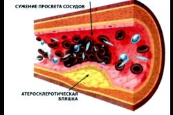 Атеросклероз - следствие высокого уровня холестерина