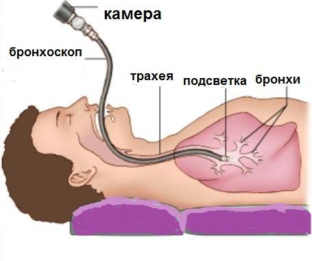 Как помощь ребенку когда болит горло