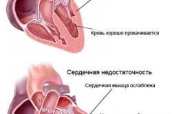 Схема сердечно недостаточности