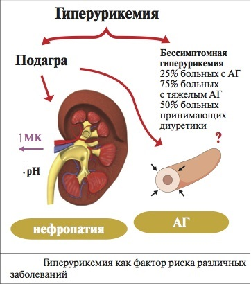 Мочевая кислота в моче повышена причины как лечить