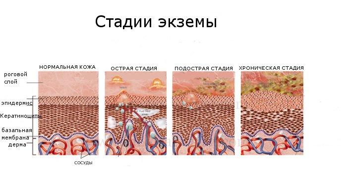 Доктор мясников о варикозе как лечить