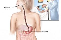 Диагностика кровотечения желудка эндоскопом