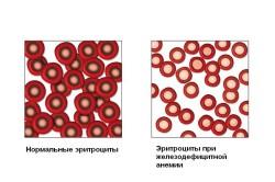 Вид эритроцитов при анемии