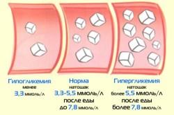 Показатели уровня глюкозы в крови в норме и при гипогликемии