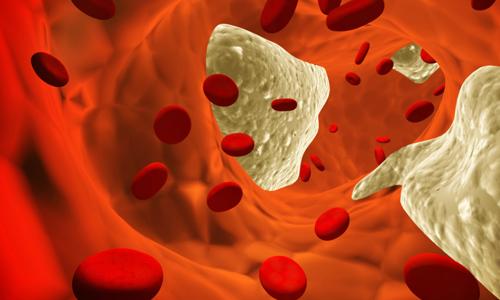 норма холестерина у женщин 40 лет