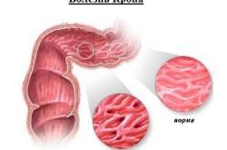 Болезнь Крона - одна из причин кровотечений из заднего прохода