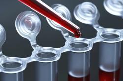 Анализ крови для диагностики апластической анемии