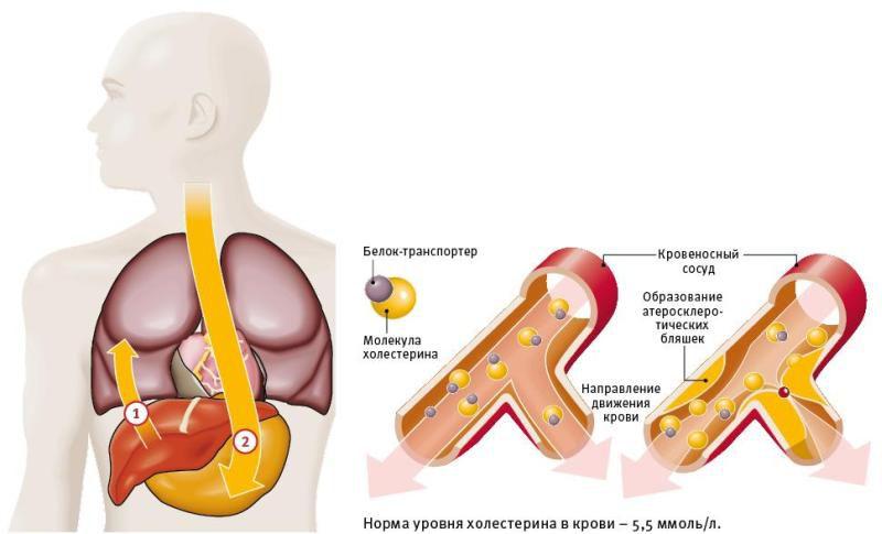 уровень холестерина при атеросклерозе сосудов