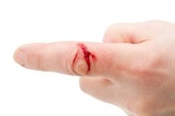 Завершение свертывания крови через 3-4 минуты
