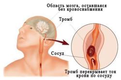 Схема преходящих нарушений мозгового кровообращения