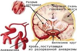 Схема аневризмы
