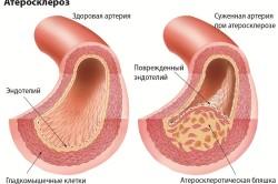 Атеросклероз сосудов головного мозга