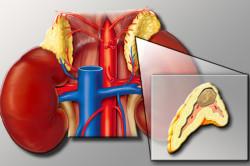 Феохромацитома - причина кровотечения из носа
