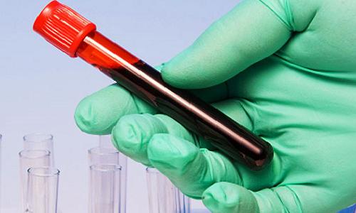 анализ на аллергию на лидокаин