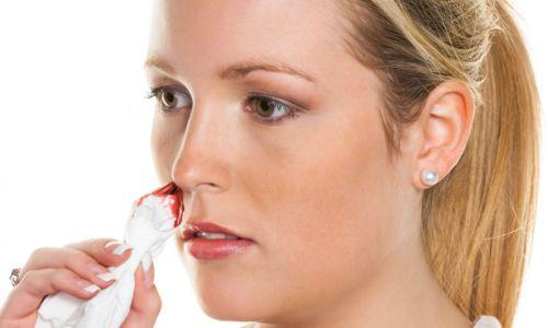 Проблема утреннего кровотечения из носа