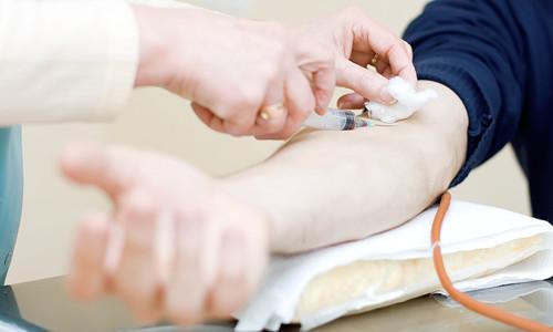 Правила подготовки к анализу крови на ВИЧ