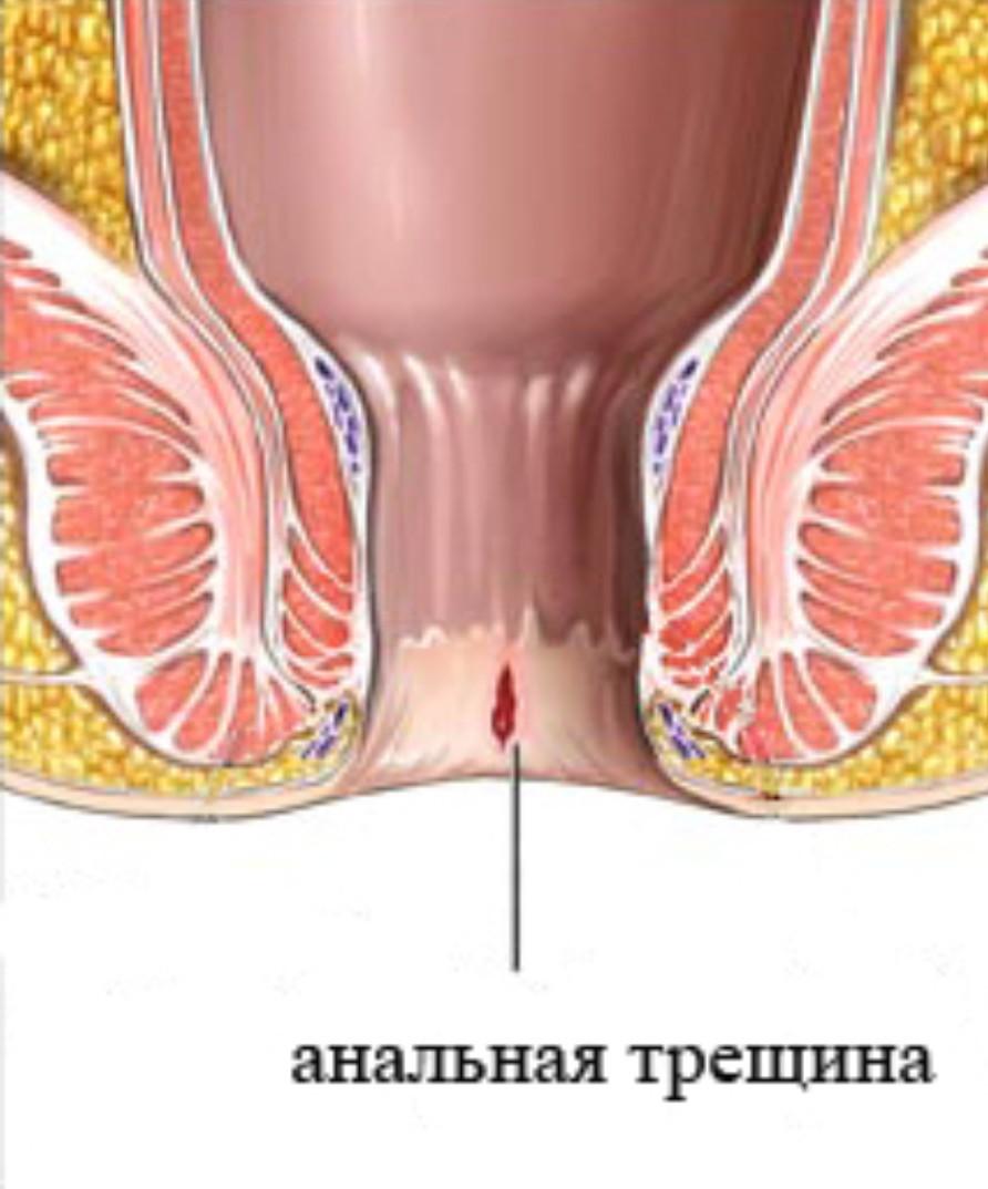 Почему при анальном сексе сочится кровь